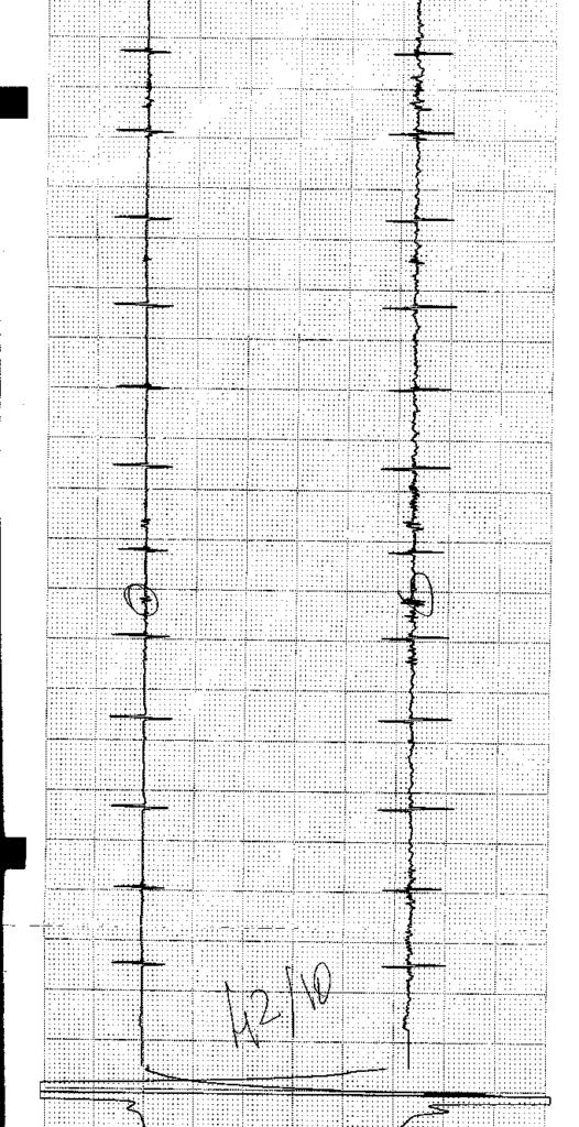 Diagramme du Tube tubulaire se situe 42/10 présentant les 13 Plaques intermédiaire et le défaut, la plaque alors ici en haut